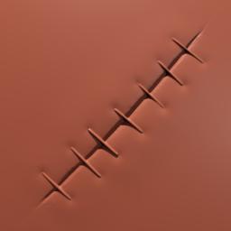 Thumbnail: stitched skin wound